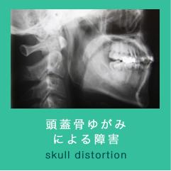 頭蓋骨ゆがみによる障害
